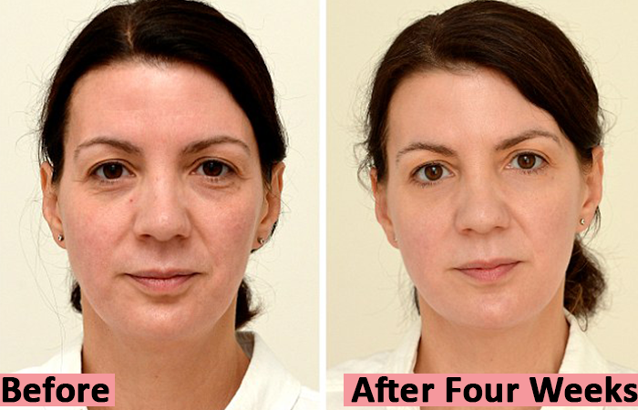 Sarah-Smith-Before-and-After-Four-Week-Water-Hydration-Therapy