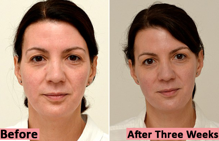Sarah-Smith-Before-and-After-Three-Weeks-of-Water-Hydration-Therapy